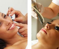 How Ultrasonic Hair Removal Works,Costs and Security