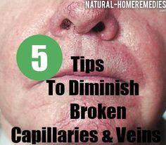 1000+ images about Broken Capillaries on Pinterest ...