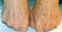 She Noticed Brown Spots On Her Hands, Then She Removed Them With This
