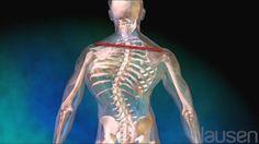 Scoliosis - Blausen Widescreen