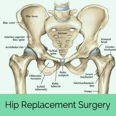 What is Hip Dysplasia? The hip is the largest ball-and-socket joint in the body, and is held together by ligaments, tendons and a joint capsule. The ball is called the femoral head, which is at the top of the femur bone, and the socket is called the aceta Hip Dislocation, Shoulder Dislocation, Hip Arthritis, Arthritis Pain Relief, Bursitis Hip, Hip Dysplasia, Hip Brace, Knee Brace, Hip Anatomy