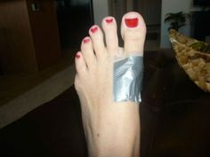 Don't Overlook These 17 Genius Duct Tape Hacks - Will Make You More Attractive - Page 4 of 18 Health Remedies, Home Remedies, Natural Remedies, Natural Treatments, Get Rid Of Warts, Parenting Done Right, Do It Yourself Crafts, Duct Tape, How To Get Rid