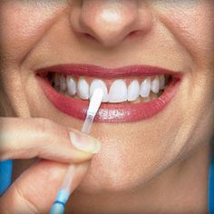2Things you should know about Teeth whitening