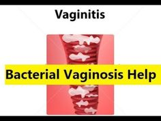 Bacterial Vaginosis Help - Bacterial Vaginitis Treatments