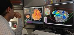 Functional magnetic resonance imaging or functional MRI (fMRI) is a functional neuroimaging procedure using MRI technology that measures brain activity by detecting associated changes in blood flow.