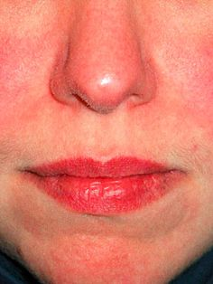Rosacea is a common skin condition that occurs on the face of adults. Symptoms of rosacea include redness of the cheeks, nose, forehead, and chin. Small blood vessels may be seen on the surface of the red skin, along with skin bumps and pimples, though this is not related to acne breakouts. Rosacea only affects the face. The cause is unknown and there is no cure, although treatment with antibiotics can minimize symptoms.