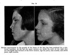 Weston Price Change Diet Facial Form