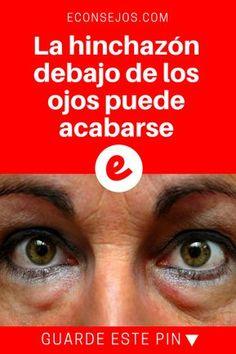 Hinchazon ojos | La hinchazón debajo de los ojos puede acabarse | La hinchazón debajo de los ojos puede acabarse con estos sencillos consejos. --->>>>