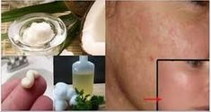 Don't Spend Money On Laser, Pills Or Creams! Washing Your Face With This Before Going To Bed Will Eliminate The Stains And Wrinkles On Your Face. - Magic Of Health 365 Baking Soda Shampoo, Face Wrinkles, Prevent Wrinkles, Wash Your Face, Look Younger, Skin Problems, Grow Hair, Facial Masks, Pills