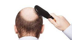 Sitio web dedicado a la investigacion de la caida de cabello, analizando todos los procedimientos, desde los injertos, trasplantes, tonicos, implantes y protesis capilares para ayudar a resolver la calvicie.