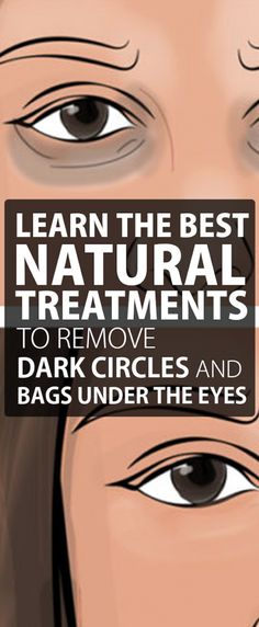 Learn The Best Natural Treatments To Remove Dark Circles And Bags Under The Eyes. - Only Herbal Medicine Baking Soda And Lemon, Dark Circles Under Eyes, Under Eye Bags, Natural Treatments, Natural Remedies, Eye Treatment, Herbal Medicine, Natural Medicine, Skin Care Tips