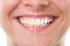 Testez ce dentifrice blanchissant ultra efficace et naturelnoté 3.4 - 33 votes Nous aimons vous proposer des techniques pour réaliser vos produits par vous-même, car nous savons combien il est plaisant de savoir ce qu'on met dedans et on n'est pas surpris par des produits toxiques. En plus, cela permet de personnaliser le produit. Aujourd'hui, … More