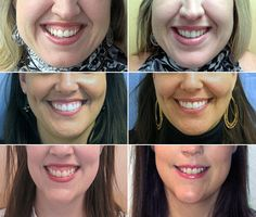 """Unhappy with your """"gummy smile?"""" Ask your plastic surgeon if #Botox injections to the lip tissue will drop your upper lip just enough."""