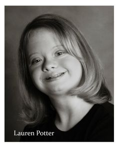 """Lauren Potter and Robin Trocki, two actresses with Down syndrome who regularly appear on the television series """"Glee,"""" are receiving The Arc. Lauren Potter, Disabled People, Down Syndrome, True Beauty, Glee, Disability, Actors & Actresses, Famous People, Love Her"""