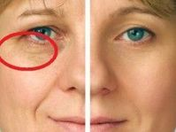 Get Your Very Own Facelift Without Surgery By Employing Easy Facial Yoga Routines Facial Yoga, Facial Muscles, Facelift Without Surgery, Face Yoga Exercises, Toning Exercises, Yoga Information, Easy Yoga Poses, Acupressure, Organic Beauty