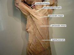 cat muscles | Upper Body: Ventral: Thorax: Superficial