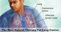 Nice The Best Natural Therapy For Lung Cancer: How To Treat It and Prevent It + RECIPES   D.I.Y. Health Check more at http://ukreuromedia.com/en/pin/1266/