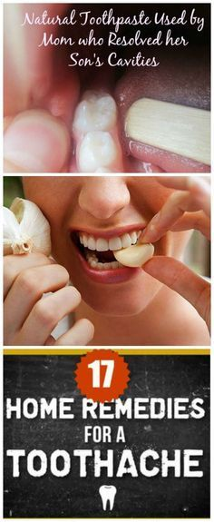 17 Natural Ways To Relieve Toothache... * Want to know more, click on the image.