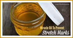 You can also make miracle oil to help prevent stretch marks.