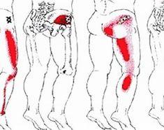 What Is The Piriformis Syndrome?The Anatomy And Physiology Of Piriformis Syndrome.Symptoms And Signs Of The Piriformis Syndrome.The Causes and Diagnosis Of Piriformis Syndrome. Sciatica Pain Relief, Sciatic Pain, Sciatic Nerve, Nerve Pain, Back Pain Relief, Sciatica Stretches, Muscle Stretches, Ankle Stretches, Fibromyalgia