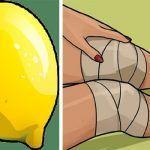 Knee pain Videos After Surgery - - - Knee pain Relief Tumeric - Knee pain Chart - Knee pain Workout Arthritis, Baker's Cyst, Knee Pain Relief, After Surgery, Doterra Essential Oils, Beauty Recipe, Tricks, Natural Remedies, Lemon