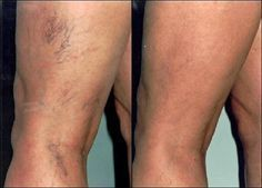 Looking to remove unsightly spider veins? The Baywood Clinic offers sclerotherapy and laser for Toronto spider veins removal in Toronto. Call the vein clinic today! Varicose Vein Remedy, Varicose Veins Treatment, Get Rid Of Spider Veins, Spider Legs, Spider Vein Treatment, Nail Treatment, Vein Removal, Tips Belleza, Body Fitness