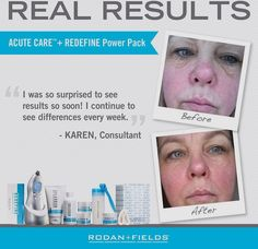 #1 in Anti-aging for a reason!