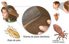 elimina los piojos y liendres