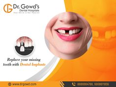 An Implant is the healthiest option for people who have lost a tooth. Implants look, feel and function like natural teeth providing you with additional comfort, security, and confidence over the traditional treatments Teeth Implants, Dental Implants, Holistic Dentist, Dental Hospital, Tooth Replacement, Implant Dentistry, Dental Cosmetics, Free Dental, Dental Bridge