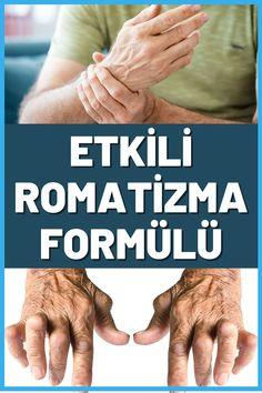Etkili romatizma formülü sayesinde iltihaplı romatizma sonucu oluşan ağrıları bitirebilirsiniz. Romatizma belirtileri vücudunuzda giderek belirginleşiyorsa romatizma iltihabını bu etkili formülle kurutabilirsiniz. Eklem romatizması için doğal çözüm formülü olacak bu karışım romatizmanın neden olduğu ağrıları hafifletmeye yardımcı olur. #romatizma #iltihap #sağlıklıyaşam #romatizmatedavisi #doğaltedavi #WartsOnHands Warts On Hands, Warts On Face, Arthritis Relief, Rheumatoid Arthritis, Natural Wart Remover, Wart On Finger, Get Rid Of Warts, Skin Bumps