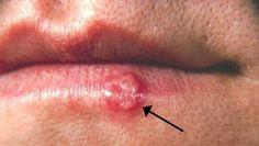 ¿Llegó el día de tu cita y de pronto descubres que tienes un herpes labial? Es realmente una sorpresa inesperada y muy poco grata, porque estas lla...