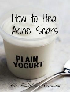 Natural Yogurt Acne Scar Remover Recipe. Recipe: 4 teaspoons of lemon juice, 3 teaspoons of plain yogurt, 4 tablespoons of honey, and 1 egg white. Mix all four ingredients together and let sit on your scars for 15 minutes. When the 15 minutes are done, simply rinse with warm water.