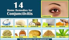 Home Remedies to Ease the Symptoms of Pink Eye or Conjunctivitis #PinkEye…