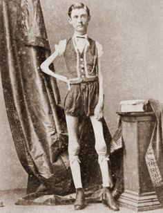 """Isaac Sprague, the original skeleton man. 2yrs before his death, he was 5'6"""" weighing 46 lbs."""