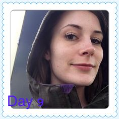 Day 9. Breakouts make the no makeup challenge harder but still going strong!