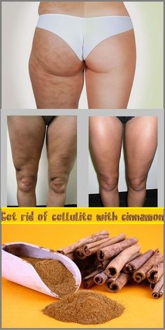 GET RID OF CELLULITE WITH CINNAMON. Coffee, honey and cinnamon are known as best natural ingredients to beat cellulite. With a spoonful of honey you can