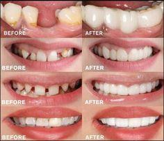 MAGIC Teeth Brace - Bigsuprise Perfect Smile Teeth, Snap On Smile, Smile Smile, Veneers Teeth, Dental Veneers, Teeth Braces, Gap Teeth, Dental Braces, Best Teeth Whitening