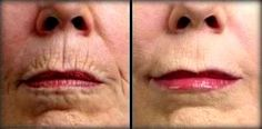 fine lines and wrinkles around the mouth