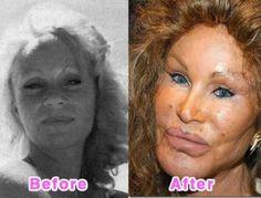 Jocelyn Wildenstein's plastic surgery
