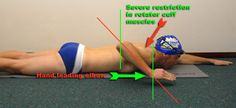 Arm recovery with poor rotation