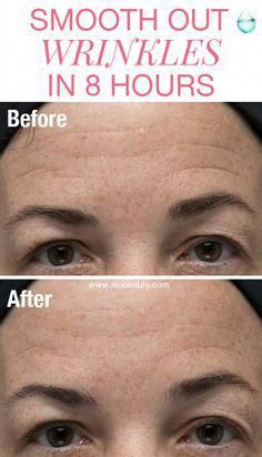 Secret Beauty Remedies How to get rid of forehead wrinkles - brow wrinkles SiO Beauty medical-grade silicone patches Before and After use - 8 hours) Remove Warts, Rid, 8 Hours, Brown Skin, Dark Brown, Face Wrinkles, Dark Spots, Top