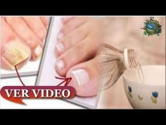 Treat Psoriasis and Get Results in 7 Days Ver Video, Tips Belleza, Pedicure, Treats, Youtube, Day, Videos, Freedom, Unique