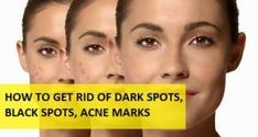 How to Get Rid of Dark Spots, Black Spots on Face from Acne, Pimples and Scars Black Spots On Face, Dark Spots On Legs, Wrinkle Remedies, Skin Care Remedies, Scar Remedies, Natural Acne Remedies, Home Remedies For Acne, Skin Care Routine For 20s, Acne Marks
