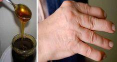 Un articol de Calin Petru Barbulescu Da, aceasta femeie s-a vindecat de reumatism cu ajutorul unui remediu preparat doar din 2 ingrediente! Cititi articolul de mai jos si veti afla cum! Iata cum functioneaza - in primul rand, trebuie sa stiti ca aceasta reteta ne-a fost trimisa de unu Arthritis Remedies, Gemstones, Wings, Gems, Jewels, Minerals