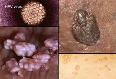 Collage of Genital Warts. Learn more http://www.fightnow.org