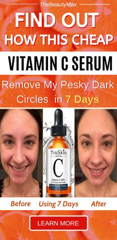 Learn how this inexpensive Vitamin face C serum remove my pesky dark circles in 7 days. Best Anti Aging Serum, Best Face Serum, Best Vitamin C Serum, Natural Vitamin C, Facial Serum, Facial Toner, How To Exfoliate Skin, How To Treat Acne