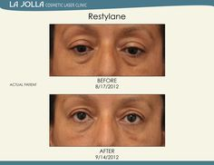 Patient treated with Restylane at La Jolla Cosmetic Laser Clinic. La Jolla, Under Eye Fillers, Under Eye Puffiness, Laser Clinics, Beauty Soap, Dermal Fillers, Eye Serum, Skin Care Tips, Cosmetics