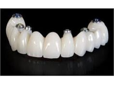 Global Dental Implants and Prosthetics Market Research Report 2017