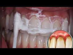 Teeth Whitening Remedies, Natural Teeth Whitening, Health Tips, Health And Wellness, Health Fitness, Dental Health, Dental Care, Stained Teeth, Herbalife Nutrition