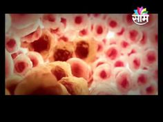 CANCER and MODERN HOMEOPATHY's curative treatment